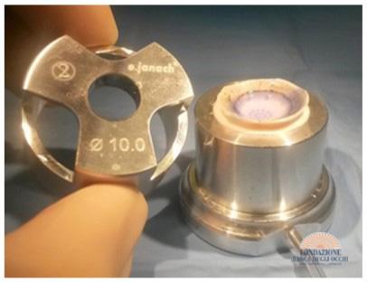 Cornea pre-tagliata (lenticolo) per endocheratoplastica
