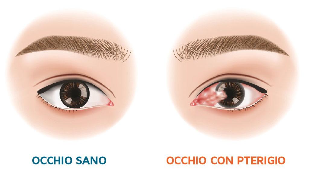 Pterigio, una nuova tecnica sfrutta le capacità delle cellule staminali della congiuntiva dell'occhio